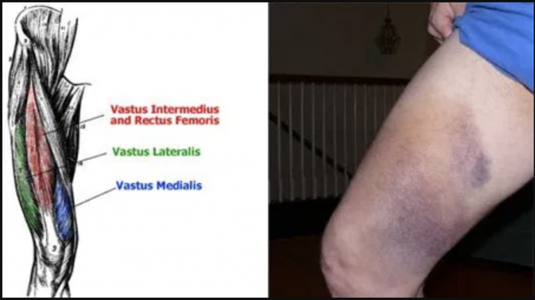 mand med kontusion og stort blåt mærke på sit venstre ben