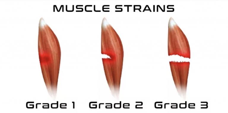 tre eksempler på muskelfibre med en fibersprængning